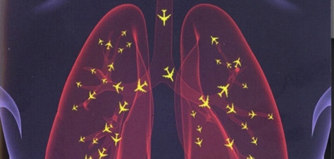 Proof: ultra-fine particles from aircraft affect health